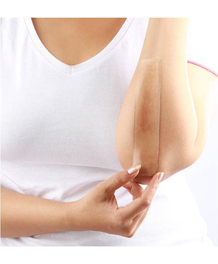 ScarTreat Adhesive Gel Sheet for Post Delivery Scars